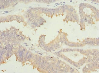 Immunohistochemistry (Formalin/PFA-fixed paraffin-embedded sections) - Anti-EIF2B1 antibody (ab229704)