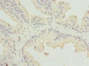 Immunohistochemistry (Formalin/PFA-fixed paraffin-embedded sections) - Anti-MR1 antibody (ab229715)