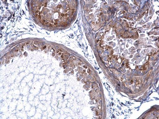 Immunohistochemistry (Formalin/PFA-fixed paraffin-embedded sections) - Anti-PRELP antibody (ab229719)