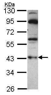 Western blot - Anti-GNAZ antibody (ab229721)