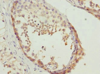Immunohistochemistry (Formalin/PFA-fixed paraffin-embedded sections) - Anti-TESK2 antibody (ab229723)