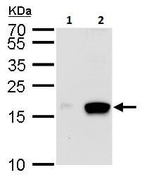 Western blot - Anti-Melanoma Inhibitory Activity antibody (ab229736)