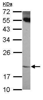 Western blot - Anti-ANKRD39 antibody (ab229737)