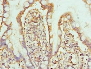 Immunohistochemistry (Formalin/PFA-fixed paraffin-embedded sections) - Anti-HPS1 antibody (ab229740)