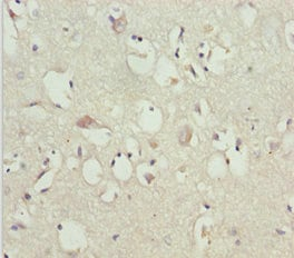 Immunohistochemistry (Formalin/PFA-fixed paraffin-embedded sections) - Anti-GAS2L1 antibody (ab229753)
