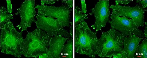 Immunocytochemistry/ Immunofluorescence - Anti-Zyxin antibody - N-terminal (ab229757)