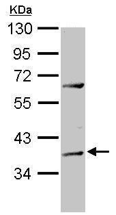 Western blot - Anti-ADAT1 antibody (ab229759)