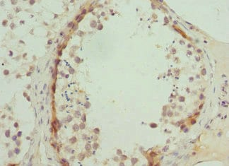 Immunohistochemistry (Formalin/PFA-fixed paraffin-embedded sections) - Anti-ATP-binding cassette sub-family A member 3 antibody (ab229761)