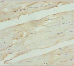 Immunohistochemistry (Formalin/PFA-fixed paraffin-embedded sections) - Anti-RDH12 antibody (ab229764)