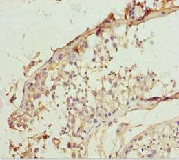Immunohistochemistry (Formalin/PFA-fixed paraffin-embedded sections) - Anti-LCN6 antibody (ab229771)