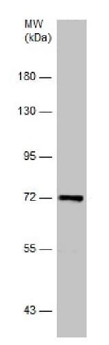 Western blot - Anti-PLK1 antibody - C-terminal (ab229775)