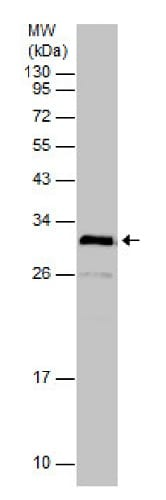 Western blot - Anti-PHOS/PDC antibody (ab229777)