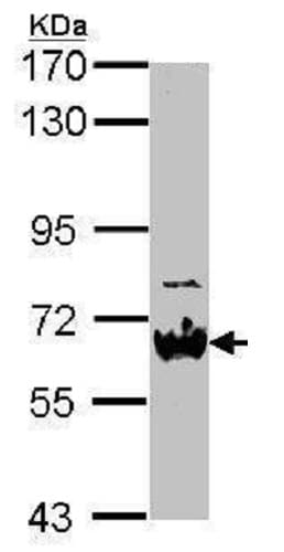 Western blot - Anti-Nab2 antibody (ab229783)