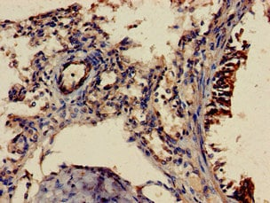 Immunohistochemistry (Formalin/PFA-fixed paraffin-embedded sections) - Anti-Shoc2 / Sur8 antibody (ab229805)