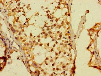 Immunohistochemistry (Formalin/PFA-fixed paraffin-embedded sections) - Anti-Dux4 antibody (ab229810)