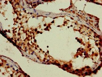 Immunohistochemistry (Formalin/PFA-fixed paraffin-embedded sections) - Anti-GABA Transporter 2 antibody (ab229815)