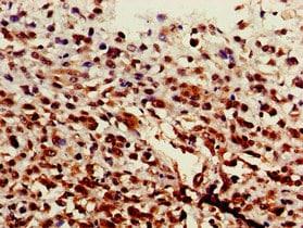 Immunohistochemistry (Formalin/PFA-fixed paraffin-embedded sections) - Anti-ST6GalNAc I antibody (ab229816)