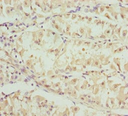 Immunohistochemistry (Formalin/PFA-fixed paraffin-embedded sections) - Anti-OPA3 antibody (ab229818)