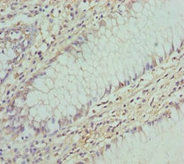 Immunohistochemistry (Formalin/PFA-fixed paraffin-embedded sections) - Anti-COG5 antibody (ab229830)