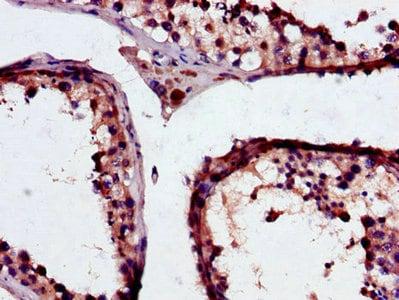 Immunohistochemistry (Formalin/PFA-fixed paraffin-embedded sections) - Anti-GSTM3 antibody (ab229858)