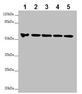 Western blot - Anti-FOXRED1 antibody (ab229860)