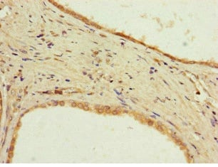 Immunohistochemistry (Formalin/PFA-fixed paraffin-embedded sections) - Anti-PPP2R2D antibody (ab229863)
