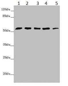 Western blot - Anti-C6ORF182 antibody (ab229864)