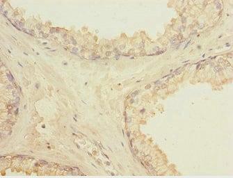 Immunohistochemistry (Formalin/PFA-fixed paraffin-embedded sections) - Anti-LMO4 antibody (ab229869)