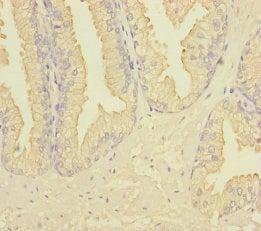 Immunohistochemistry (Formalin/PFA-fixed paraffin-embedded sections) - Anti-RAB27B antibody (ab229874)