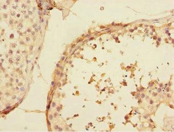 Immunohistochemistry (Formalin/PFA-fixed paraffin-embedded sections) - Anti-UBE2Z antibody (ab229877)
