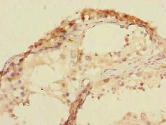 Immunohistochemistry (Formalin/PFA-fixed paraffin-embedded sections) - Anti-U2AF1L4 antibody (ab229886)