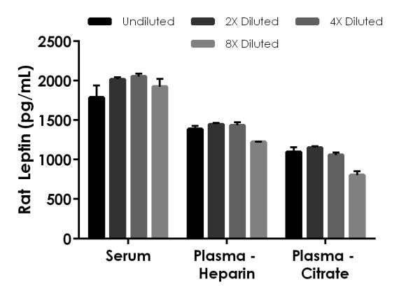 Interpolated concentrations of native Leptin in rat serum and plasma samples.