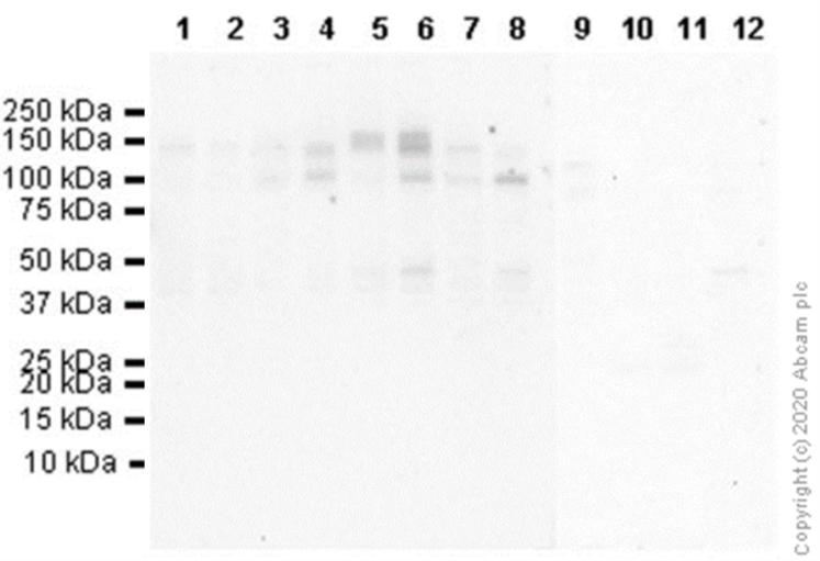 Western blot - Anti-TrkB (phospho Y705) antibody [EPR22298-67] (ab229908)