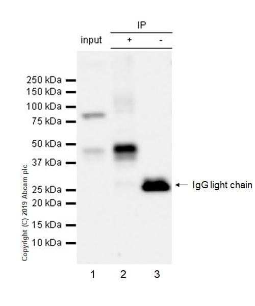 Immunoprecipitation - Anti-GIRK2 antibody [EPR22347-2] (ab229913)