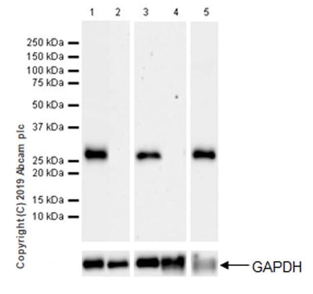Western blot - Anti-Calbindin antibody [EPR22698-236] (ab229915)