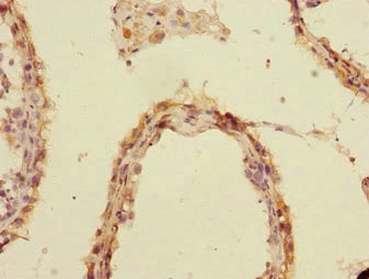 Immunohistochemistry (Formalin/PFA-fixed paraffin-embedded sections) - Anti-UBE2Z antibody (ab229921)