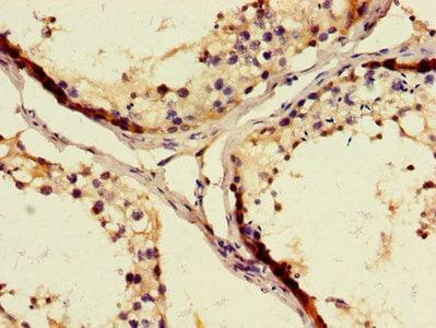 Immunohistochemistry (Formalin/PFA-fixed paraffin-embedded sections) - Anti-WFDC8 antibody (ab229922)