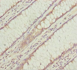 Immunohistochemistry (Formalin/PFA-fixed paraffin-embedded sections) - Anti-KLHL7 antibody (ab229923)