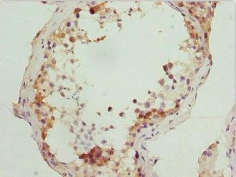 Immunohistochemistry (Formalin/PFA-fixed paraffin-embedded sections) - Anti-RUFY2 antibody (ab229924)