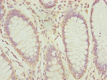 Immunohistochemistry (Formalin/PFA-fixed paraffin-embedded sections) - Anti-PDCD2L antibody (ab229928)