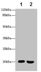 Western blot - Anti-MSRB2 antibody (ab229940)