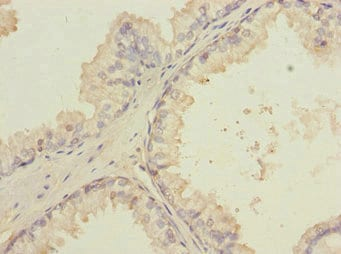 Immunohistochemistry (Formalin/PFA-fixed paraffin-embedded sections) - Anti-LMO4 antibody (ab229945)