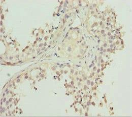 Immunohistochemistry (Formalin/PFA-fixed paraffin-embedded sections) - Anti-REEP1 antibody (ab229964)