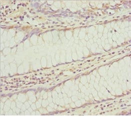 Immunohistochemistry (Formalin/PFA-fixed paraffin-embedded sections) - Anti-KLHL7 antibody (ab229971)