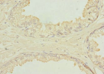 Immunohistochemistry (Formalin/PFA-fixed paraffin-embedded sections) - Anti-SH3GLB2 antibody (ab229981)