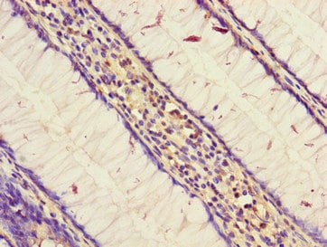 Immunohistochemistry (Formalin/PFA-fixed paraffin-embedded sections) - Anti-STARD9 antibody (ab229993)
