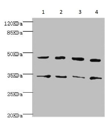 Western blot - Anti-Cytohesin 2 antibody (ab229994)