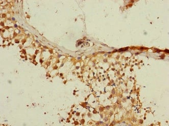 Immunohistochemistry (Formalin/PFA-fixed paraffin-embedded sections) - Anti-RGS14 antibody (ab229997)