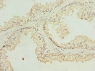 Immunohistochemistry (Formalin/PFA-fixed paraffin-embedded sections) - Anti-SH3GLB2 antibody (ab229998)