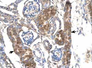 Immunohistochemistry (Formalin/PFA-fixed paraffin-embedded sections) - Anti-SLC17A3 antibody (ab23332)